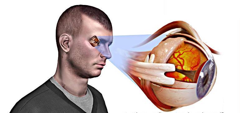 Признаки и первые симптомы глаукомы у взрослых и детей на ...