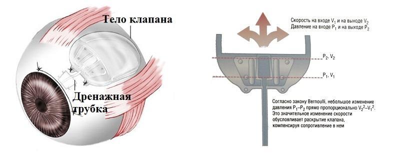Дренажи и шунты при глаукоме - виды операций