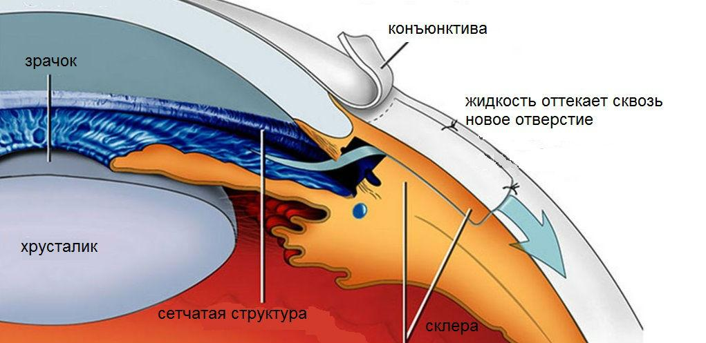 Шунты для операци при глаукоме