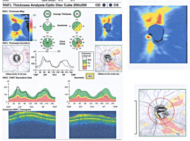 Оптическая когерентная томография при глаукоме