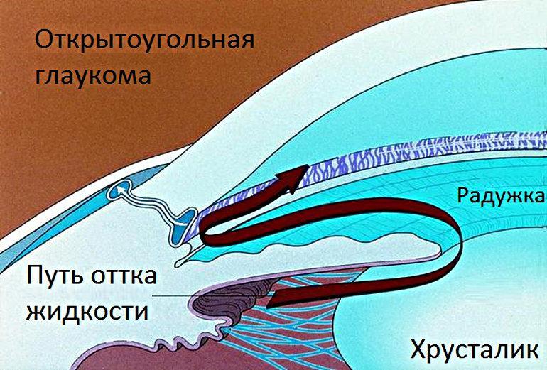 Открытоугольная глаукома - первичная и вторичная