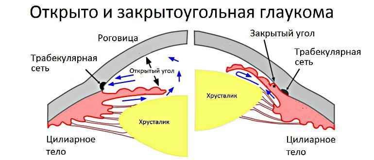 Глаукома: виды и классификация: первичная, вторичная, по стадиям